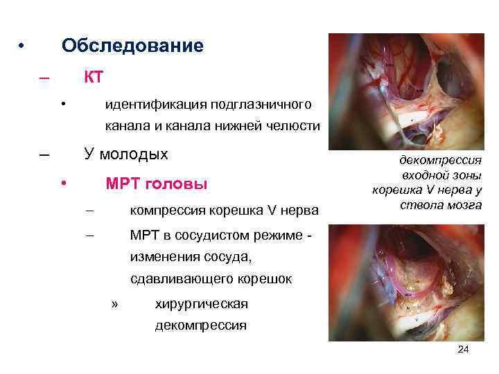 • Обследование – КТ • идентификация подглазничного канала и канала нижней челюсти –