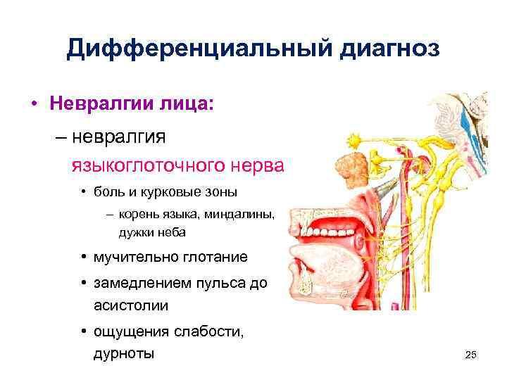 Дифференциальный диагноз • Невралгии лица: – невралгия языкоглоточного нерва • боль и курковые зоны