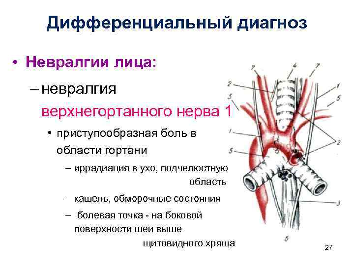 Дифференциальный диагноз • Невралгии лица: – невралгия верхнегортанного нерва 1 • приступообразная боль в