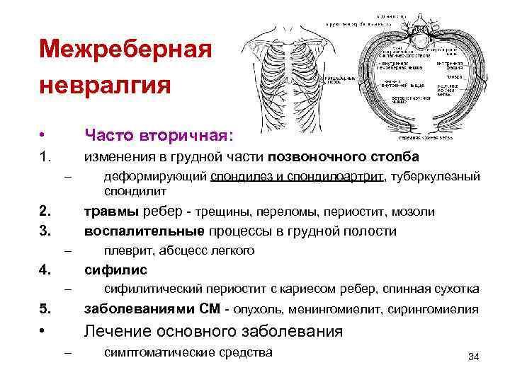 Межреберная невралгия • Часто вторичная: 1. изменения в грудной части позвоночного столба – 2.