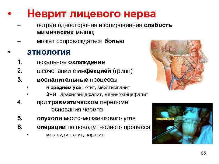 • Неврит лицевого нерва – острая одностороння изолированная слабость мимических мышц может сопровождаться