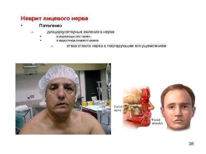 Неврит лицевого нерва • Патогенез – дисциркуляторные явления в нерве • • в окружающих