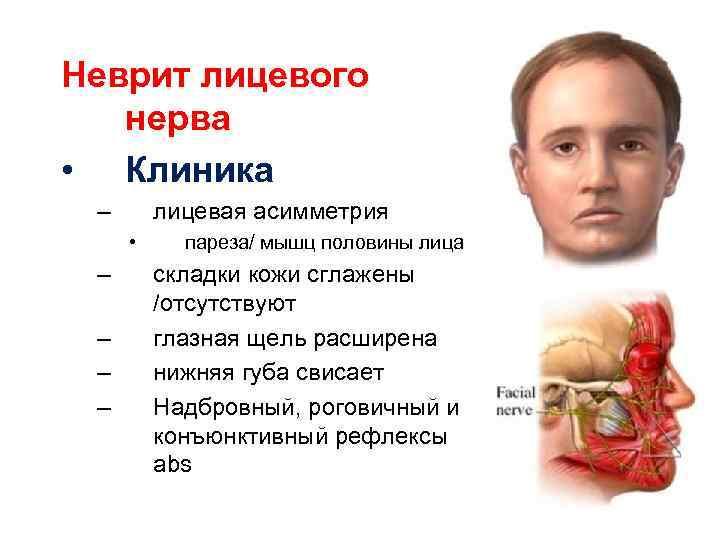 Неврит лицевого нерва • Клиника – лицевая асимметрия • – – пареза/ мышц половины