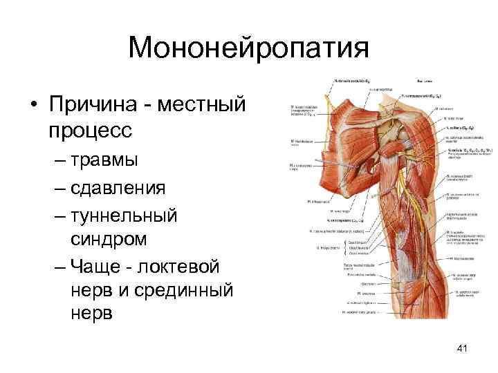 Мононейропатия • Причина - местный процесс – травмы – сдавления – туннельный синдром –