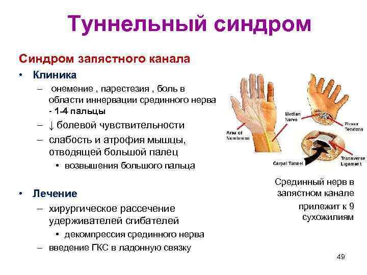 Туннельный синдром Синдром запястного канала • Клиника – онемение , парестезия , боль в