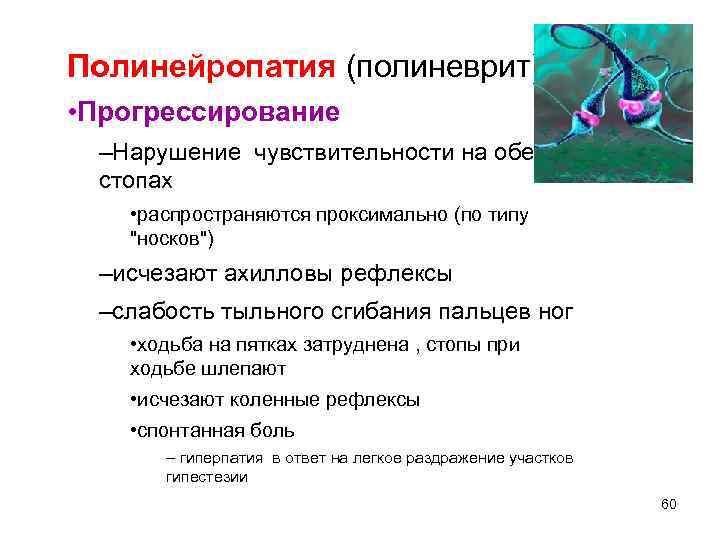 Полинейропатия (полиневрит) • Прогрессирование –Нарушение чувствительности на обеих стопах • распространяются проксимально (по типу