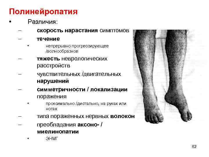 Полинейропатия • Различия: – – скорость нарастания симптомов течение • – непрерывно прогрессирующее /волнообразное
