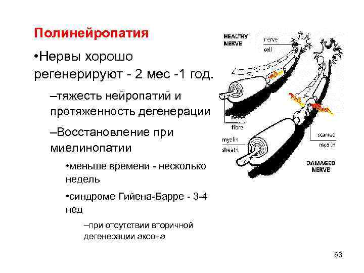 Полинейропатия • Нервы хорошо регенерируют - 2 мес -1 год. –тяжесть нейропатий и протяженность