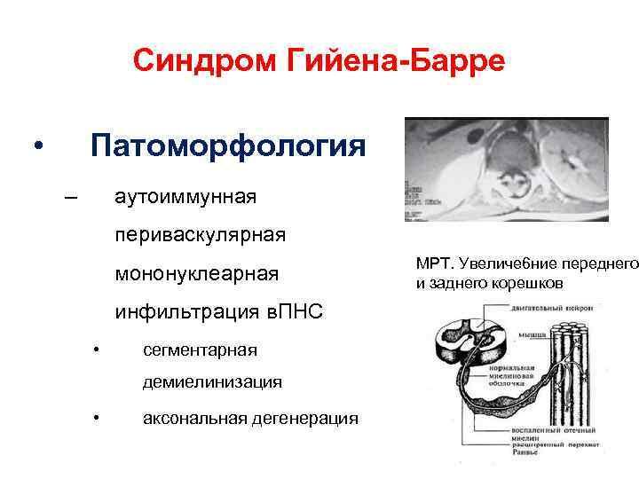Синдром Гийена-Барре • Патоморфология – аутоиммунная периваскулярная мононуклеарная МРТ. Увеличе 6 ние переднего и