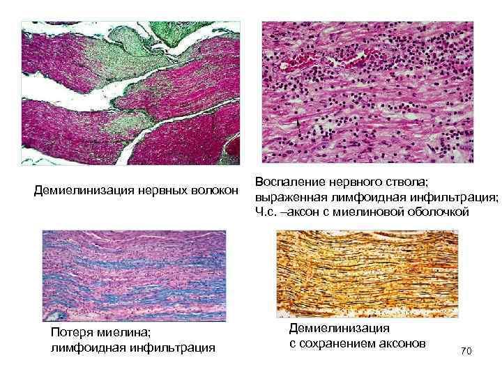 Демиелинизация нервных волокон Потеря миелина; лимфоидная инфильтрация Воспаление нервного ствола; выраженная лимфоидная инфильтрация; Ч.