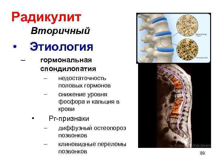 Радикулит Вторичный • Этиология – гормональная спондилопатия – – • недостаточность половых гормонов снижение