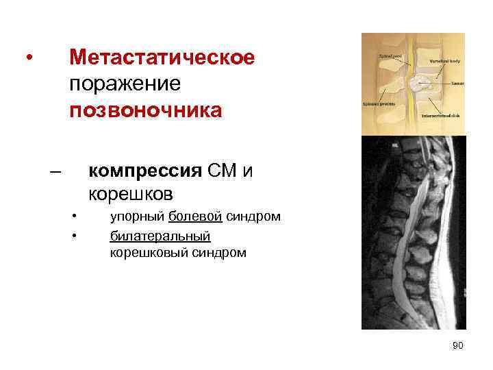 • Метастатическое поражение позвоночника – компрессия СМ и корешков • • упорный болевой