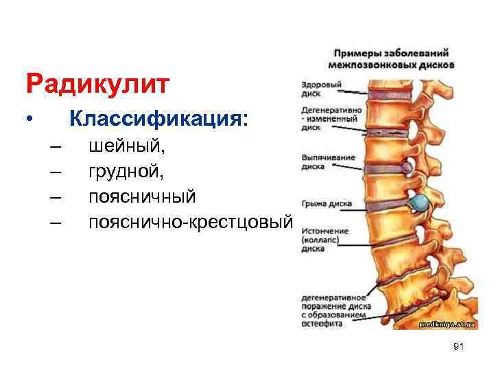 Радикулит • Классификация: – – шейный, грудной, поясничный пояснично-крестцовый 91