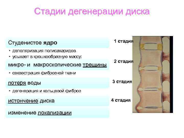Стадии дегенерации диска Студенистое ядро • деполяризация полисахаридов • усыхает в крошкообразную массу: микро-