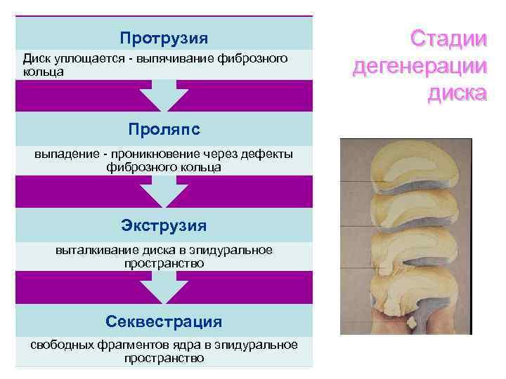 Протрузия Диск уплощается - выпячивание фиброзного кольца Проляпс выпадение - проникновение через дефекты фиброзного