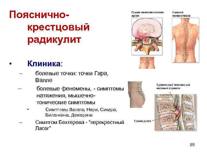 Поясничнокрестцовый радикулит • Клиника: – болевые точки: точки Гара, Валле болевые феномены, - симптомы