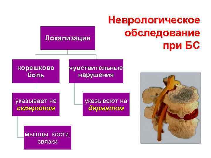 Локализация корешкова боль Неврологическое обследование при БС чувствительные нарушения указывает на склеротом мышцы, кости,
