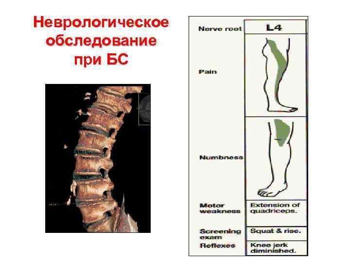 Неврологическое обследование при БС
