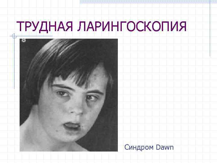 ТРУДНАЯ ЛАРИНГОСКОПИЯ Синдром Dawn