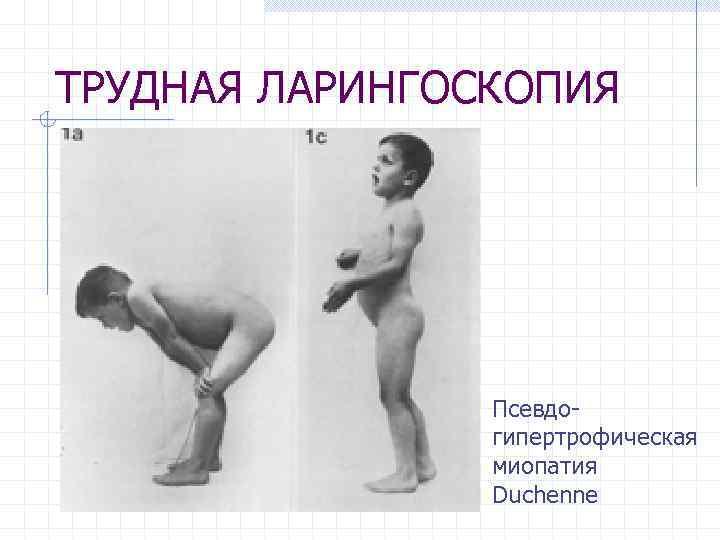 ТРУДНАЯ ЛАРИНГОСКОПИЯ Псевдогипертрофическая миопатия Duchenne