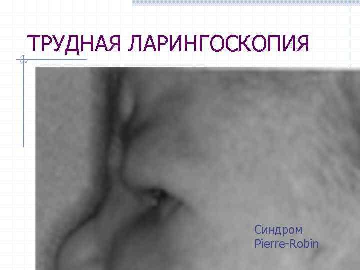 ТРУДНАЯ ЛАРИНГОСКОПИЯ Синдром Pierre-Robin