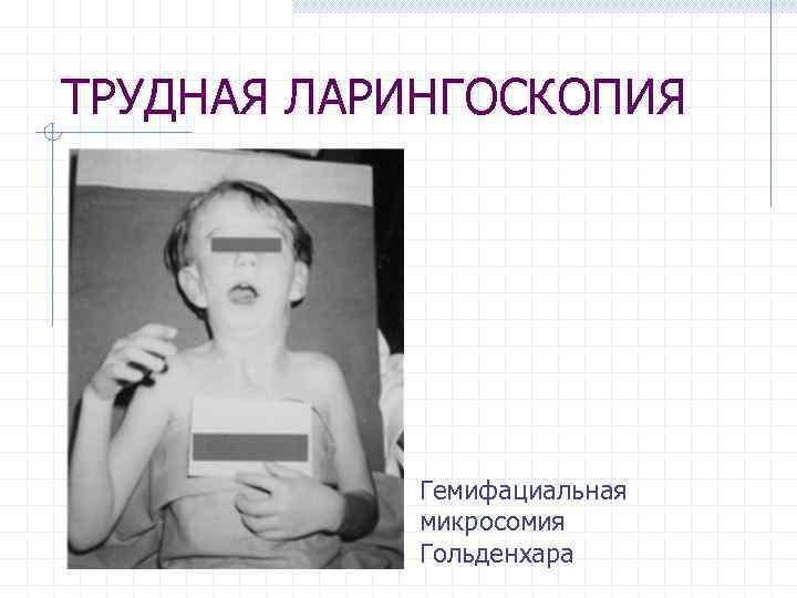 ТРУДНАЯ ЛАРИНГОСКОПИЯ Гемифациальная микросомия Гольденхара