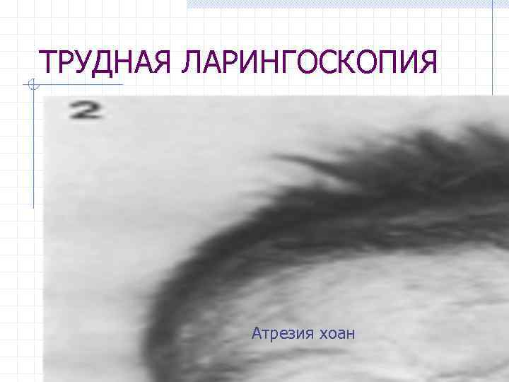 ТРУДНАЯ ЛАРИНГОСКОПИЯ Атрезия хоан