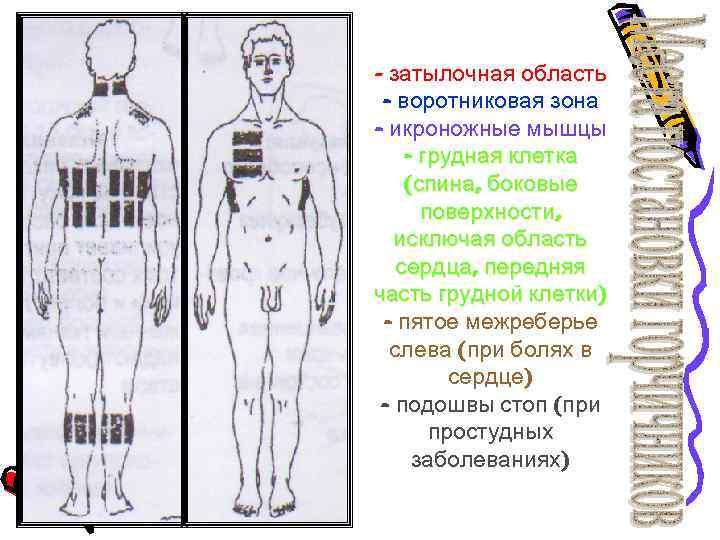 - затылочная область - воротниковая зона - икроножные мышцы - грудная клетка (спина, боковые