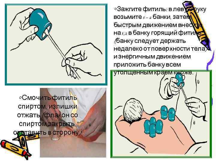 • Зажгите фитиль: в левую руку возьмите 1 – 2 банки, затем быстрым