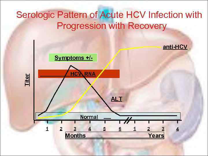 Serologic Pattern of Acute HCV Infection with Progression with Recovery anti-HCV Symptoms +/Titer HCV