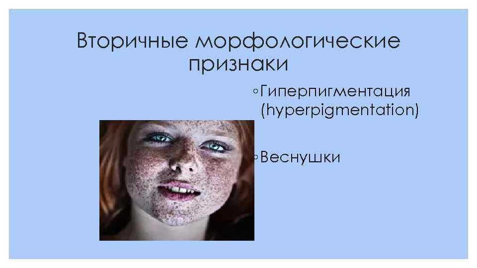 Вторичные морфологические признаки ◦ Гиперпигментация (hyperpigmentation) ◦ Веснушки