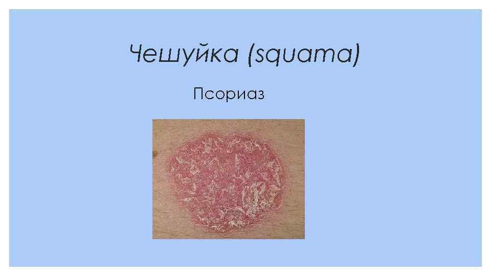 Чешуйка (squama) Псориаз