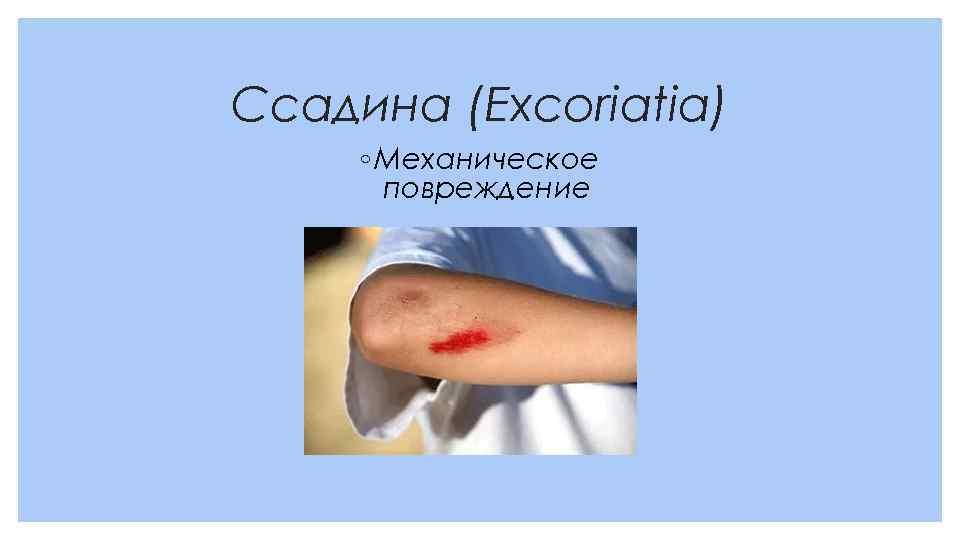 Ссадина (Excoriatia) ◦ Механическое повреждение