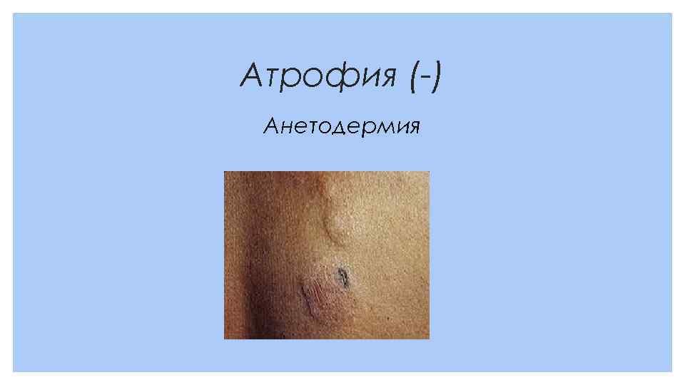 Атрофия (-) Анетодермия