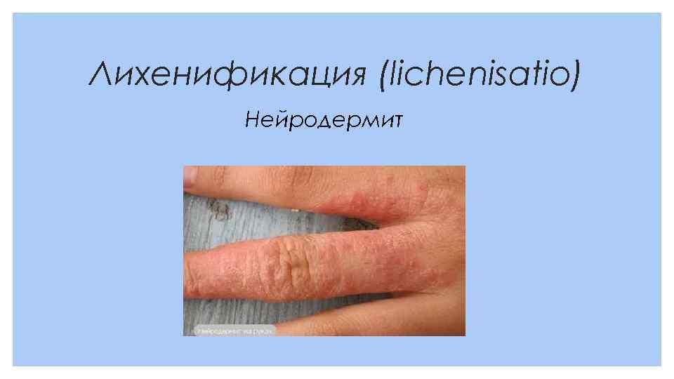 Лихенификация (lichenisatio) Нейродермит