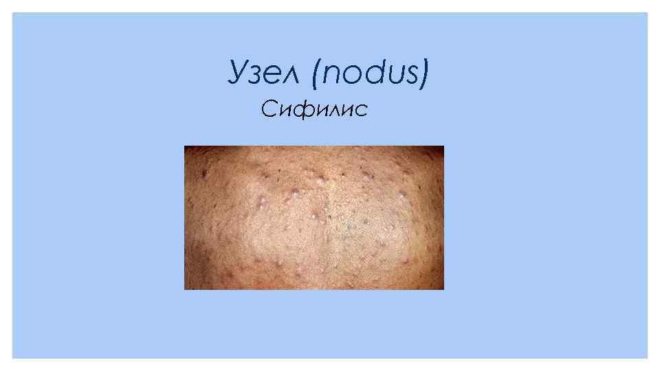 Узел (nodus) Сифилис