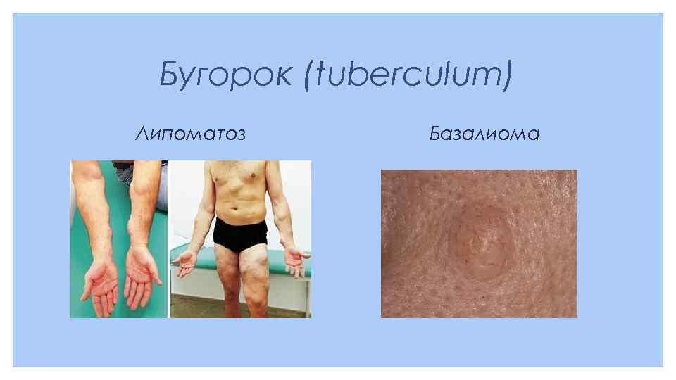 Бугорок (tuberculum) Липоматоз Базалиома