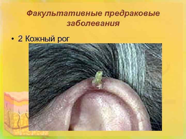 Факультативные предраковые заболевания • 2 Кожный рог