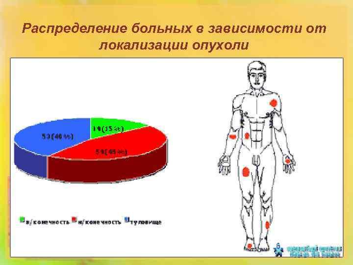 Распределение больных в зависимости от локализации опухоли