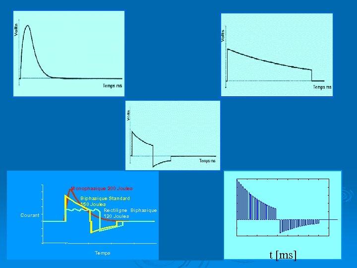 Monophasique 200 Joules Courant Biphasique Standard 150 Joules Rectiligne Biphasique 120 Joules 15 RB