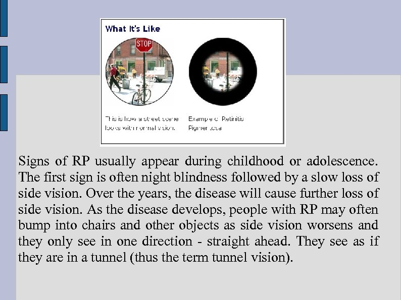 Signs of RP usually appear during childhood or adolescence. The first sign is often