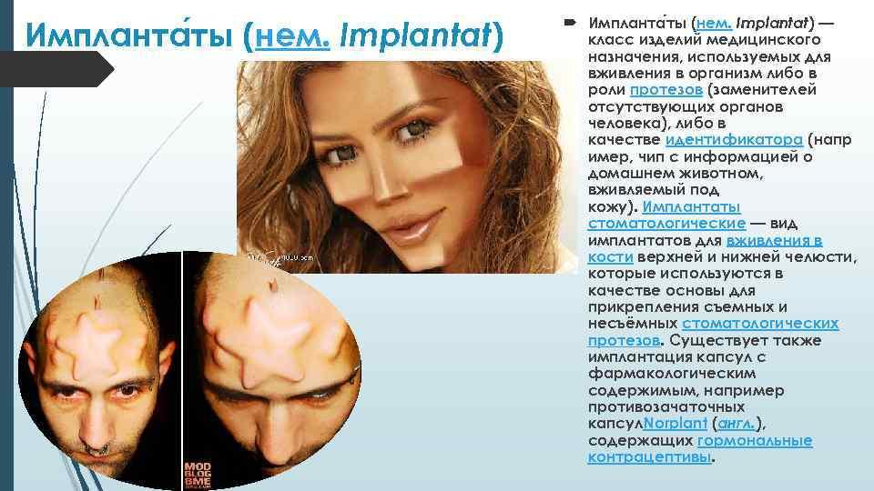 Импланта ты (нем. Implantat) — класс изделий медицинского назначения, используемых для вживления в организм