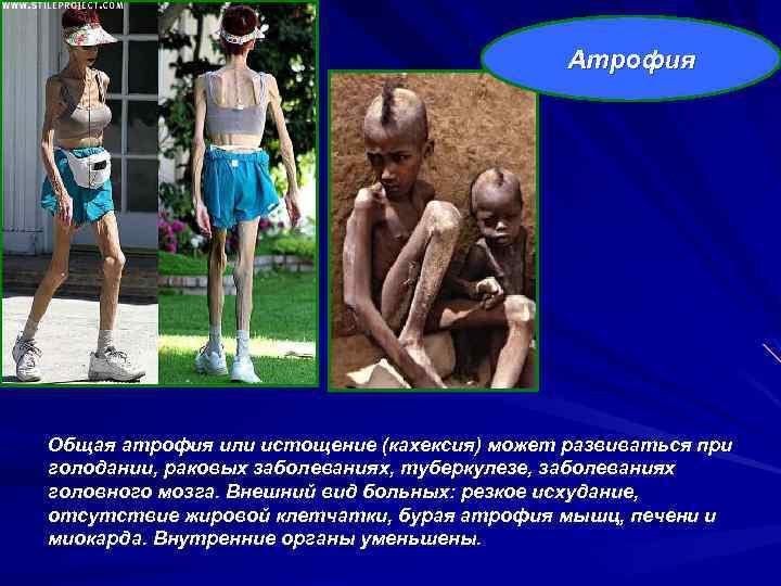 Атрофия Общая атрофия или истощение (кахексия) может развиваться при голодании, раковых заболеваниях, туберкулезе, заболеваниях
