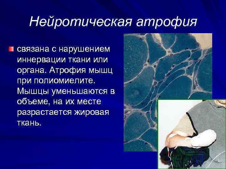 Нейротическая атрофия связана с нарушением иннервации ткани или органа. Атрофия мышц при полиомиелите. Мышцы