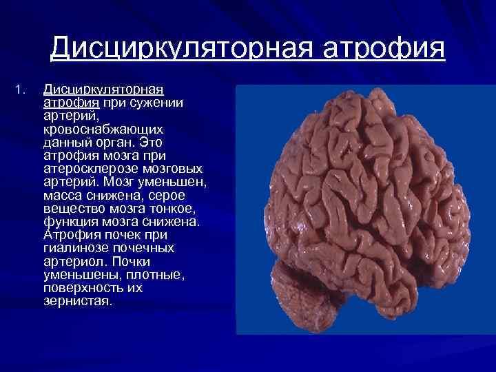 Дисциркуляторная атрофия 1. Дисциркуляторная атрофия при сужении артерий, кровоснабжающих данный орган. Это атрофия мозга