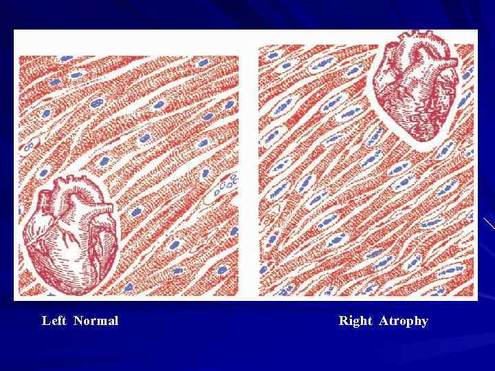 Left Normal Right Atrophy