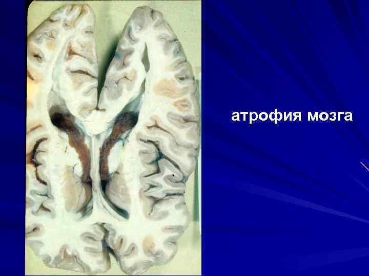 атрофия мозга