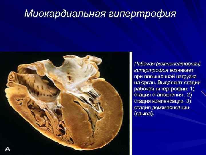 Миокардиальная гипертрофия Рабочая (компенсаторная) гипертрофия возникает при повышенной нагрузке на орган. Выделяют стадии рабочей