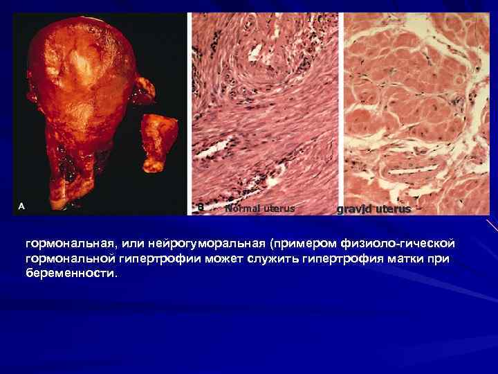 Normal uterus gravid uterus гормональная, или нейрогуморальная (примером физиоло гической гормональной гипертрофии может служить