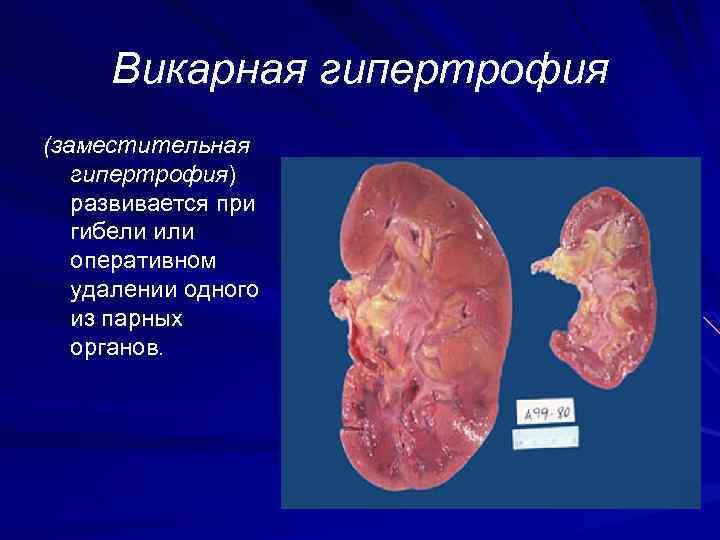 Викарная гипертрофия (заместительная гипертрофия) развивается при гибели или оперативном удалении одного из парных органов.